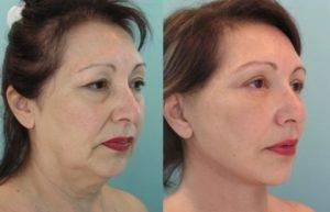 Biorevitalizatsiya-litsa-v-klinike-Kosmed