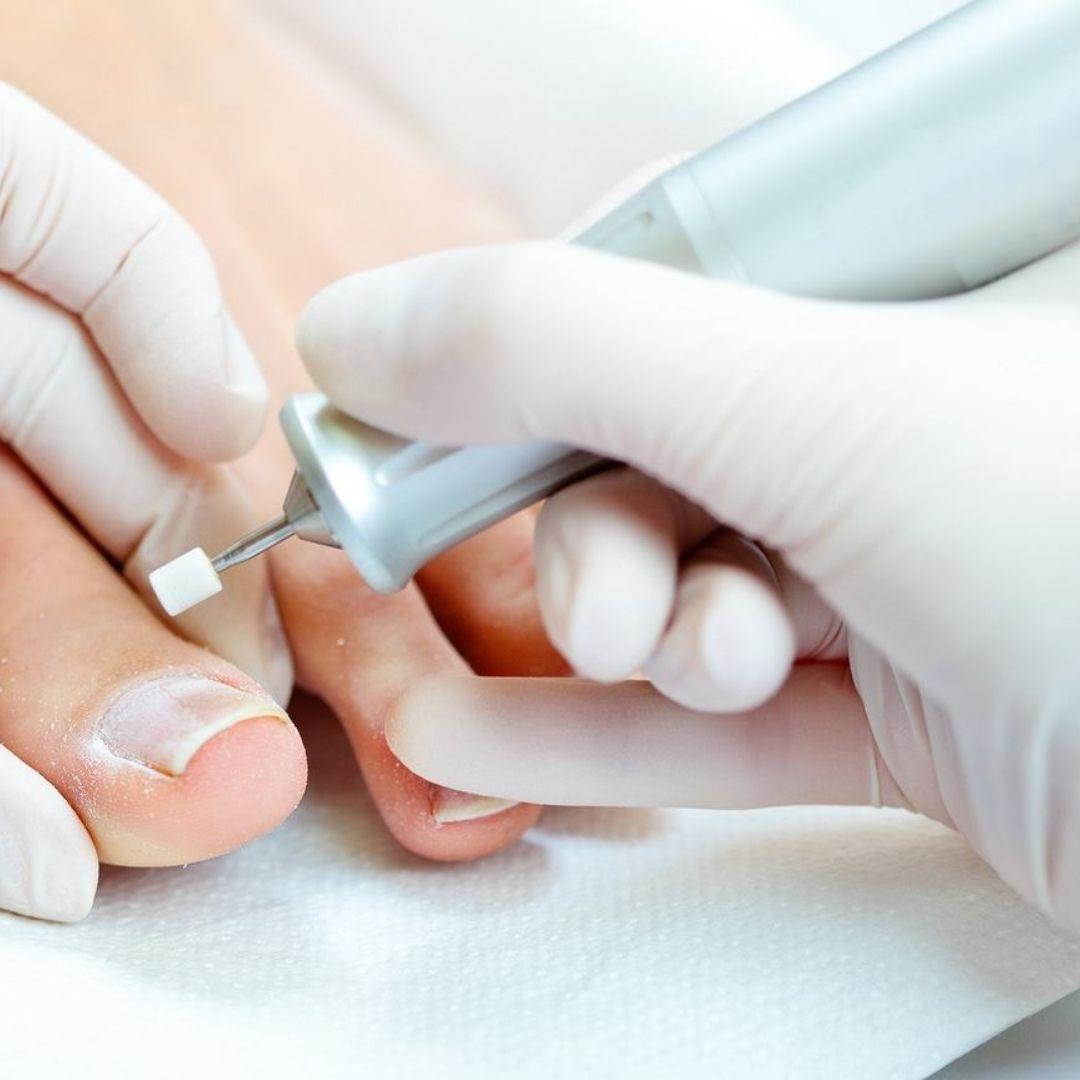 Лечение ногтя с помощью протезирования