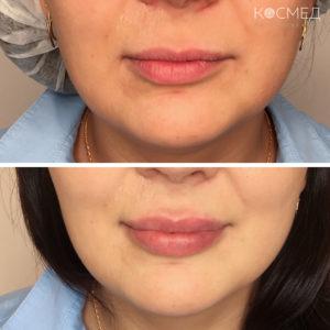 Инъкции филлеров для увеличения губ