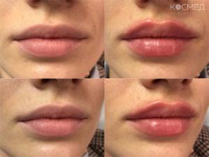 Увеличение губ киллером у косметолога на Жуковского 14 СПб