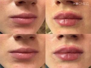 Контурная пластика губ: коррекции формы, увеличение объема