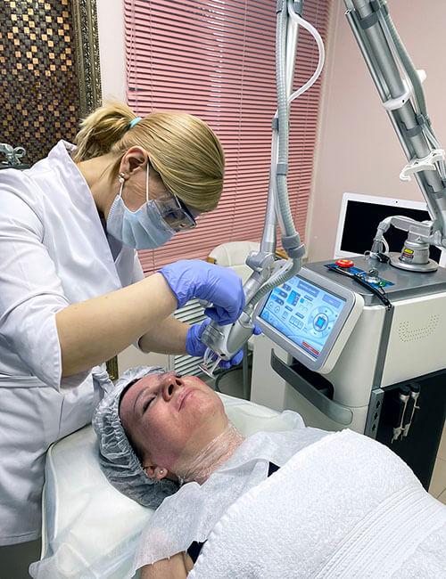 Проведение лазерного омоложения лица