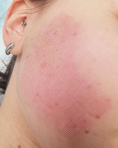 Как выглядит лазерная обработка кожи